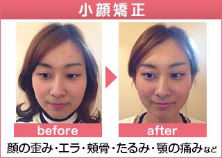 小顔矯正・顎関節症・顔の歪みでお悩みの方へ