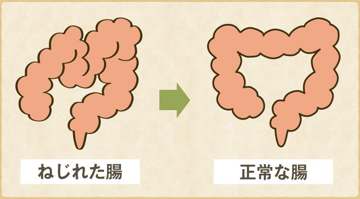 腸のねじれbeforeafterのイラスト