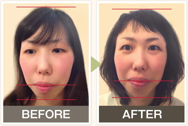 BEFORE&AFTERの写真